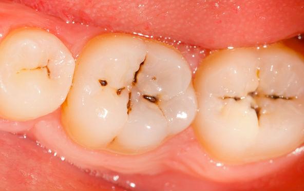 Cara Sembuhkan Gigi Berlubang Tanpa ke Dokter