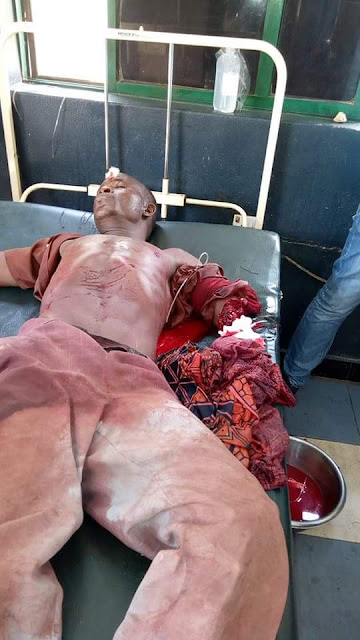 Graphic photos: Man dies in Anambra after his brother chopped off his hand over land dispute