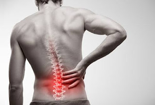 Simple Ways To Avoid Common Causes Of Back Pain