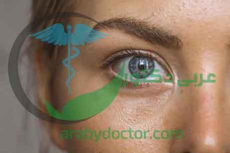 حافظ على عيونك صحية