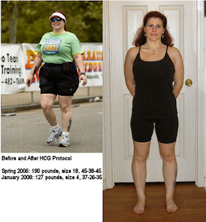 before after results hcg weight loss