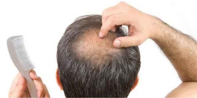 Obat Tradisional Penumbuh Rambut