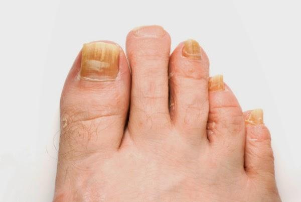 bicarbonatul de sodiu combinat cu otet de mere trateaza eficient micoza unghiilor
