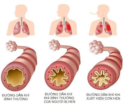 Bệnh hen suyễn sẽ trở nặng hơn nếu không cẩn thận