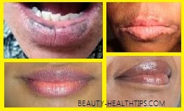 black lip discoloration