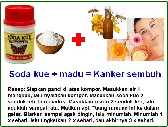 soda kue atau baking soda dan madu yang bisa menghancurkan sel kanker