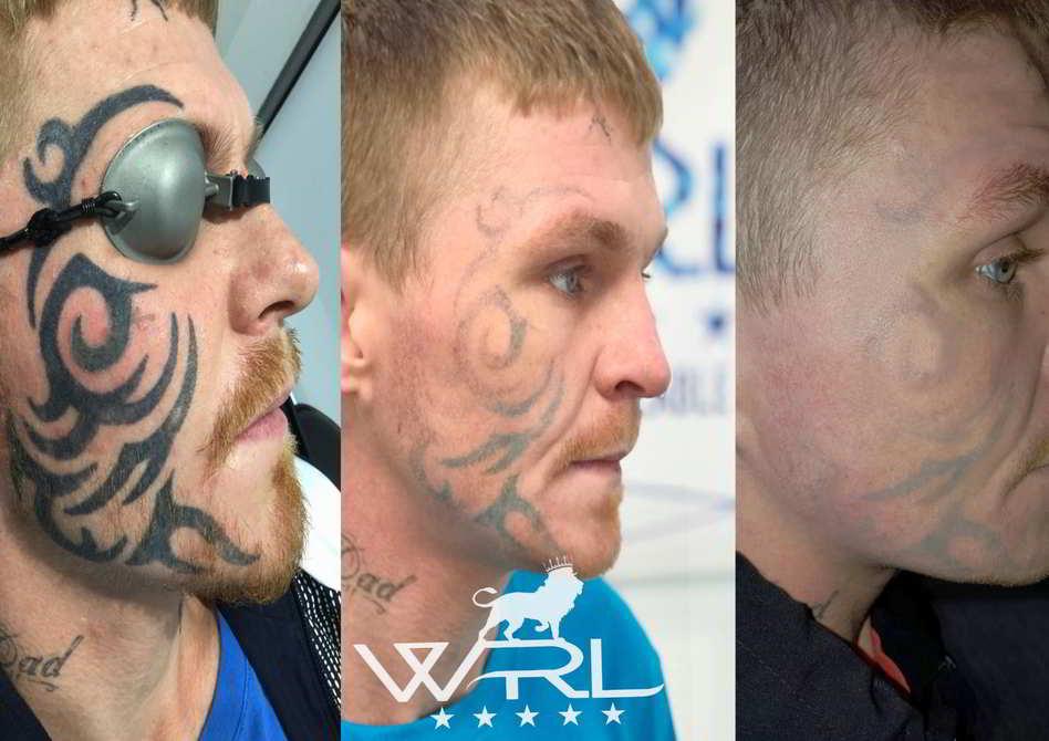Miembro de una banda quitándose tatuajes de la cara