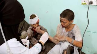 Kepala Divisi Penanganan Yaman Ungkap Situasi Yaman Semakin Memburuk