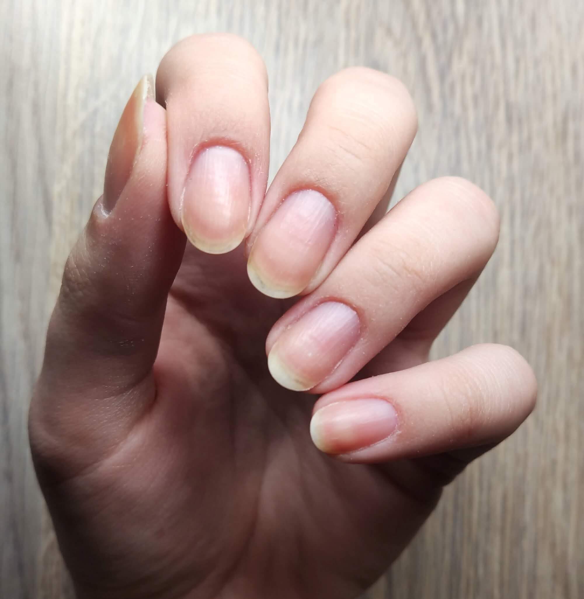 skrócone paznokcie