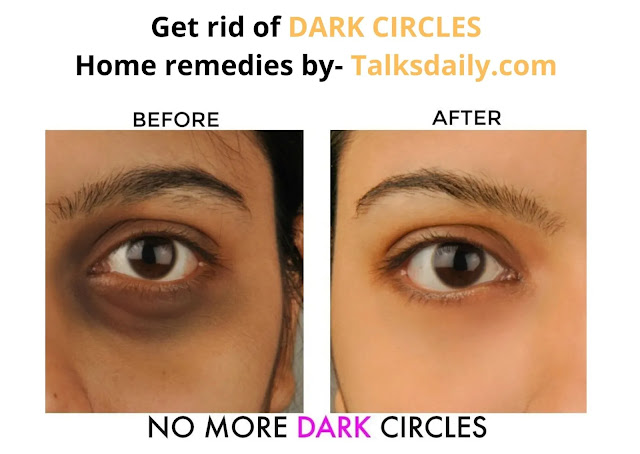 how to get rid of dark circles home remedies, how to get rid of dark circles with home remedies, how to get rid of dark circles by home remedies, home remedies to get rid of dark circles
