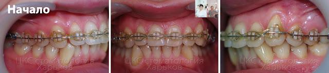 прикус в начале лечения у второго ортодонта