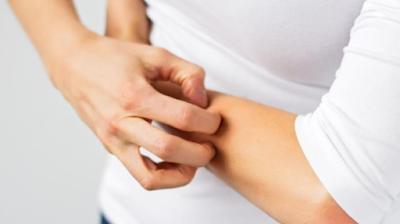 Penyebab Gatal Alergi yang Sering Datang saat Musim Hujan