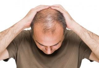 Cara Atasi Kebotakan Rambut Pada Pria