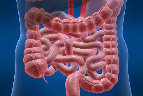 Cerita Tentang TBC Usus Bagian Keempat