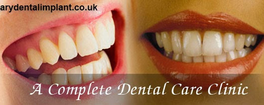 What Are Curative Dentistry Treatments?