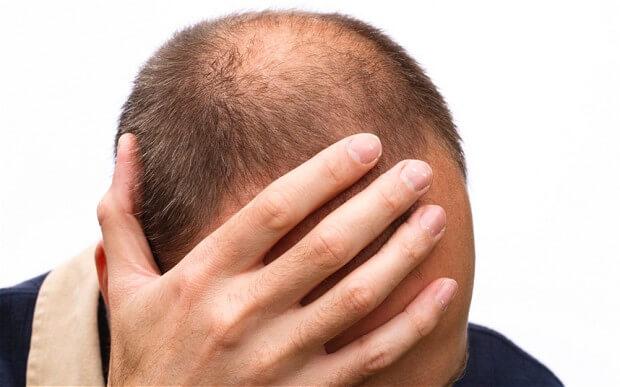 Cara Alami Menumbuhkan Rambut Agar Tidak Botak Lagi