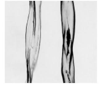 Longitudinal View-500X - Cotton fibre (mercerized)