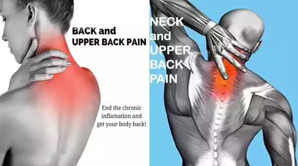 upper-back-and-neck-pain