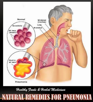 Natural Remedies For Bacterial Pneumonia