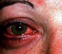 Xử trí khi bị đau mắt đỏ