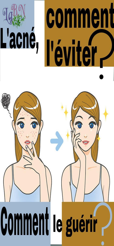 L'acné, comment l'éviter? Comment le guérir ?