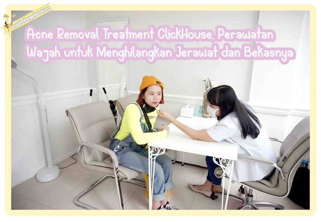 acne removal treatment clickhouse