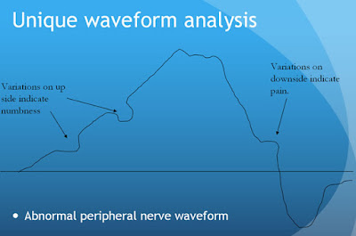 forma de onda anormal
