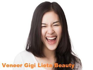Veneer Gigi Jakarta Lieta Beauty