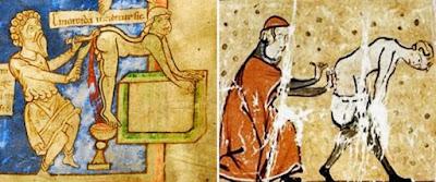 medicina medieval, medicina na idade media, tratamentos crueis da medicina na idade media, cirurgia idade media, cirurgia medieval, tortura, hemorroidas idade media