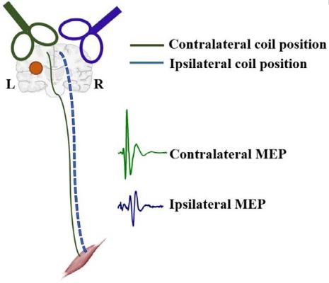 図:TMS MEP 脳卒中