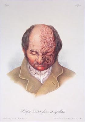 Tavole dermatologiche dell'Ottocento - editoria - annunci
