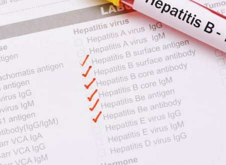 Hepatitis B more infectious than HIV – Expert