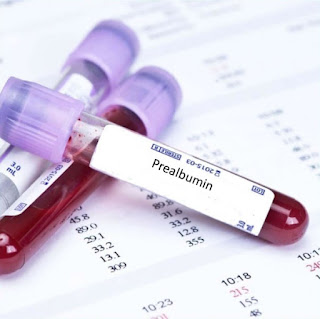 What is Prealbumin - Level, Ranges, Test  prealbumin vs Albumin