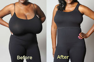 Breast Reduction Has Become A First Choice For Many Women?