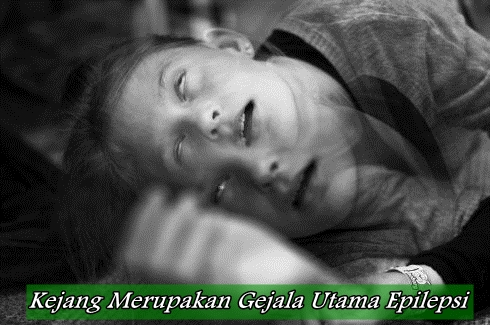 Gejala Penyakit Epilepsi