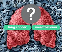 Differences Between Lung Cancer and Mesothelioma