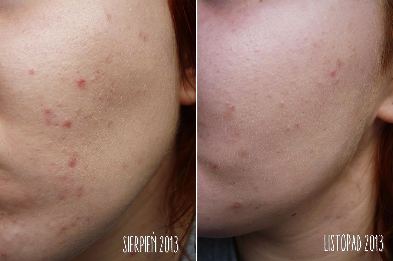 Kosmetyczne sekrety: 8 tygodni z kwasem azelainowym, czyli efekty ...