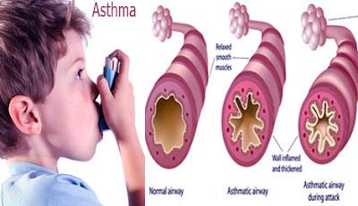 Asthma,হাঁপানি,শ্বাসরোগ