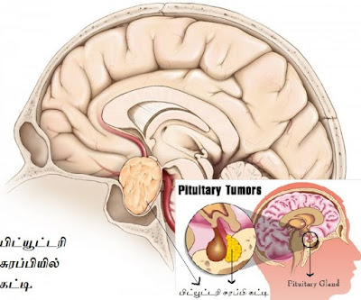 Tumor in the pituitary gland