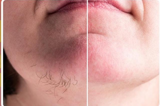 Appliquez ce masque jusqu'à la disparation définitive des poils indésirables sur le visage