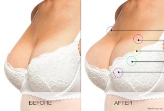 payudara wanita kencang