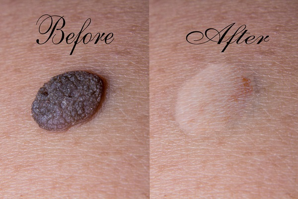 Moles Reduction - Home Ingredients That Serve To Remove Moles