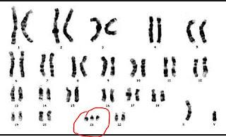 http://www.scienzita.it/lezioni/biologia/mutazioni_inserzione.jpg