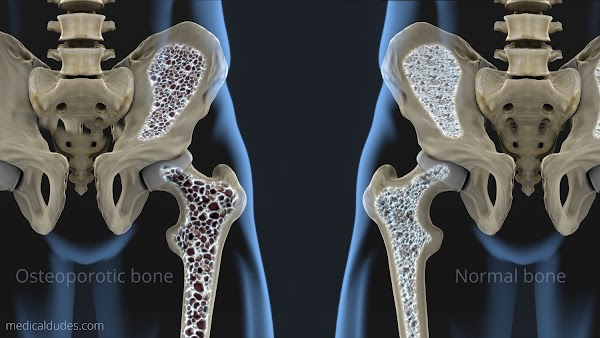 Osteoporosis: Definition, Risk Factors, Diagnosis and More (in hindi)