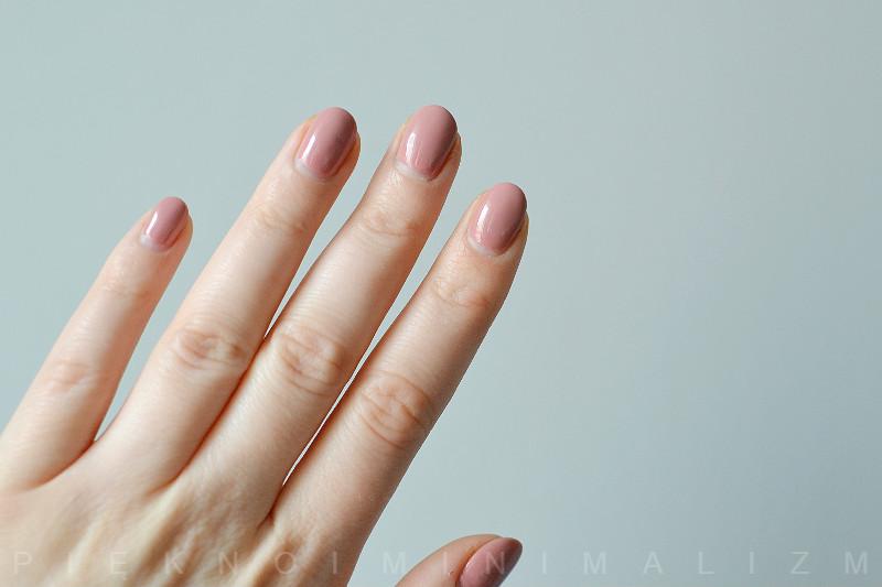 jak wyleczyć wyprysk kontaktowy skóry dłoni?