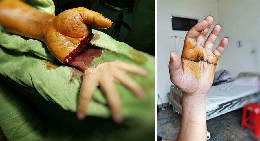 """Bệnh viện HAGL nối thành công """"bàn tay bị chém đứt lìa"""""""