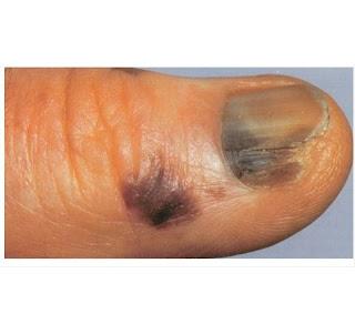 Acral Lentiginous Melanoma Symptoms