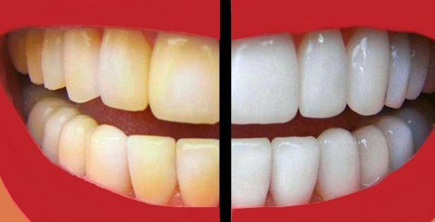 #Normally Whiten Teeth: 10 Ways To Remove Tartar Stains From Your Teeth#Health