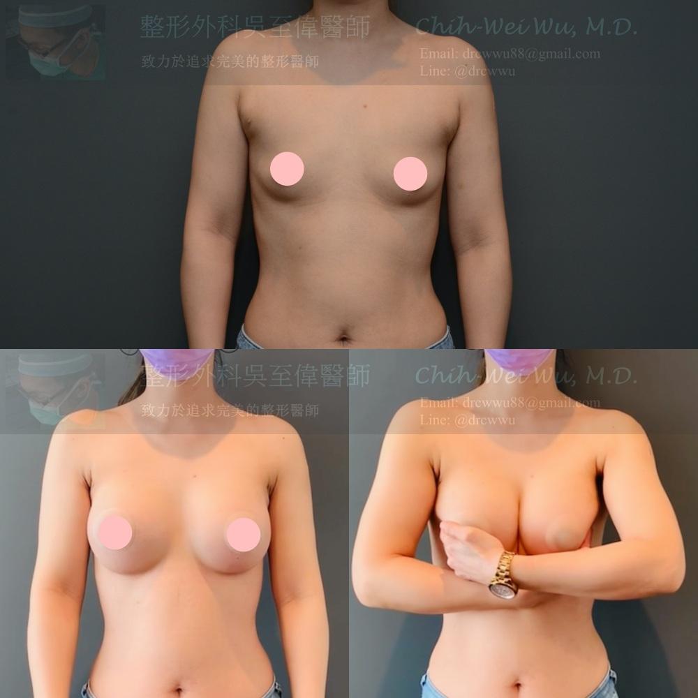 2021年二月最新魔滴隆乳案例,此案例為全程腋下內視鏡隆乳,使用Motiva Demi 340 cc的魔滴果凍矽膠