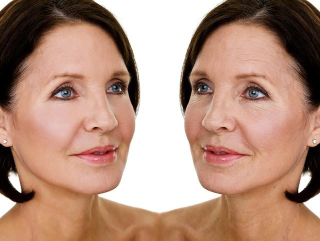 Kéo dài tuổi xuân với phương pháp căng da mặt bằng chỉ